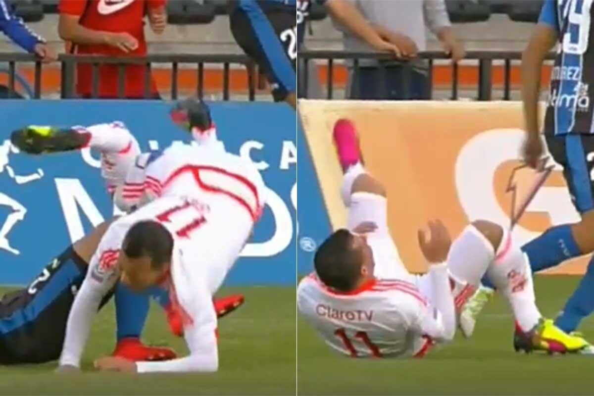 Sebastián Ubilla, jugador de la Universidad de Chile, sufrió una feísima fractura de tibia y peroné
