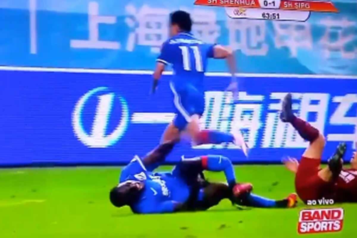 Demba Ba sufrió una fractura en su pierna izquierda