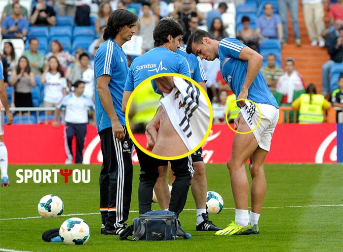 Foto: el impresionante bulto en la pierna de Gareth Bale